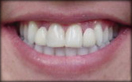 before_veneers_3